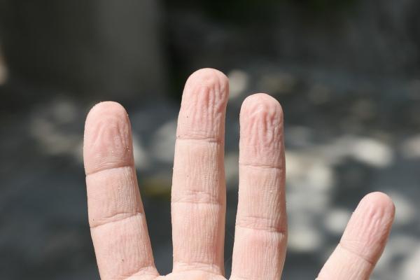 pruned-wrinkled-pruney-fingers-hand-gross