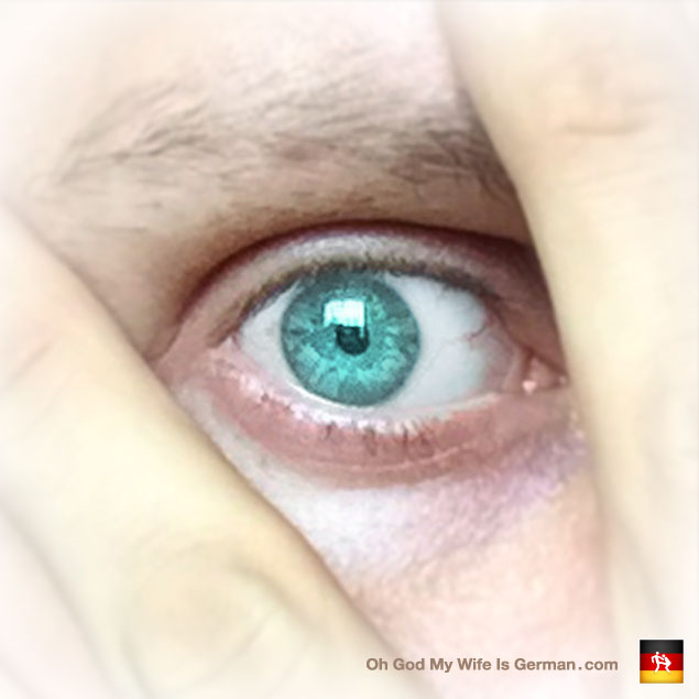 eye scared close up Twitching-Eyelid-Spasm-Eye-Funny-Pictures