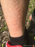 Stinging Nettle Rash - Swelling, Redness, Bumps, Progression